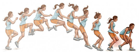 How knock-knee in women upon landing can cause knee injuries because of anatomy.
